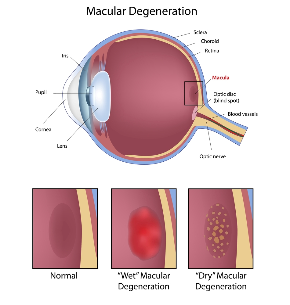 Images of wet and dry types of macular degeneration